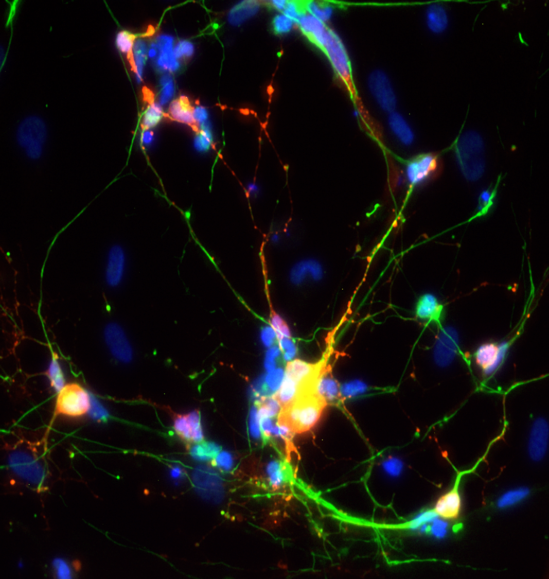 i5HT (serotonergic) neurons stained for 5HT (red), AADC (green) and DNA (blue)